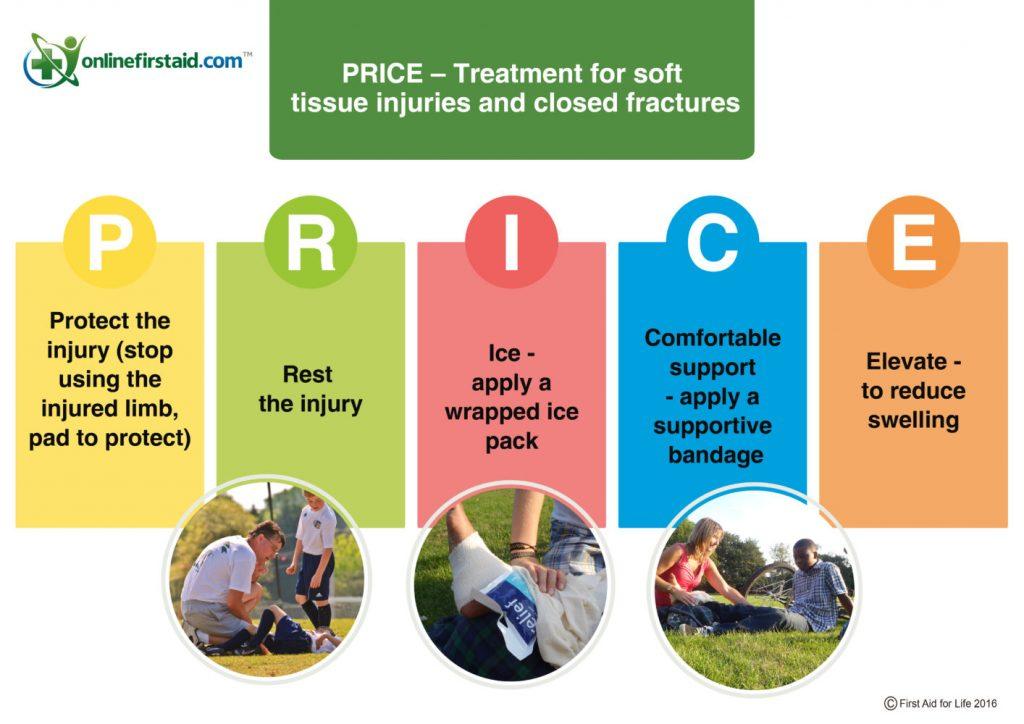 درمان سریع آسیب های اسکلتی عضلانی با اقدامات PRICE