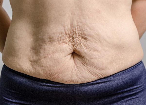 شل شدن پوست بعد از لاغری